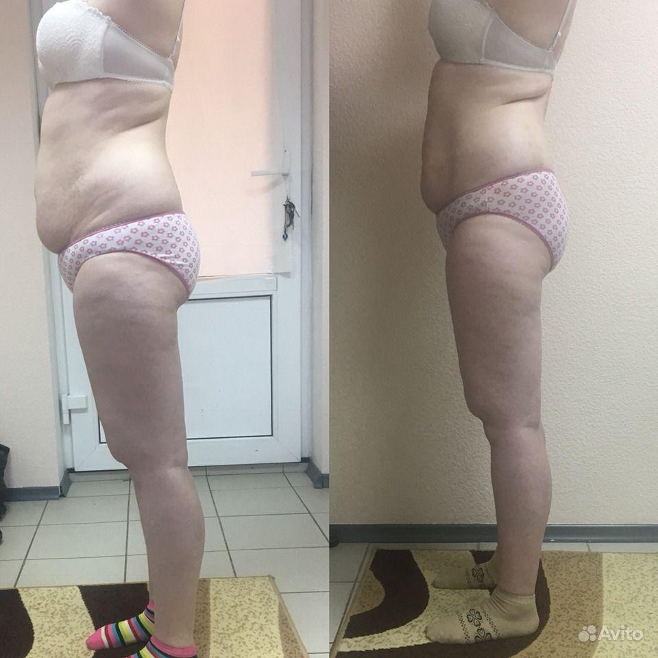 Аппаратное похудение красноярск